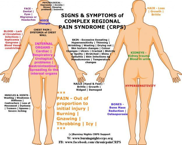 CRPS-Symptoms-CRPS-Signs-RSD-Signs-RSD-Symptoms