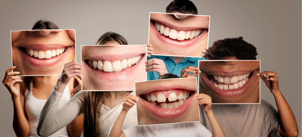 pictures of teeth with fluoride use
